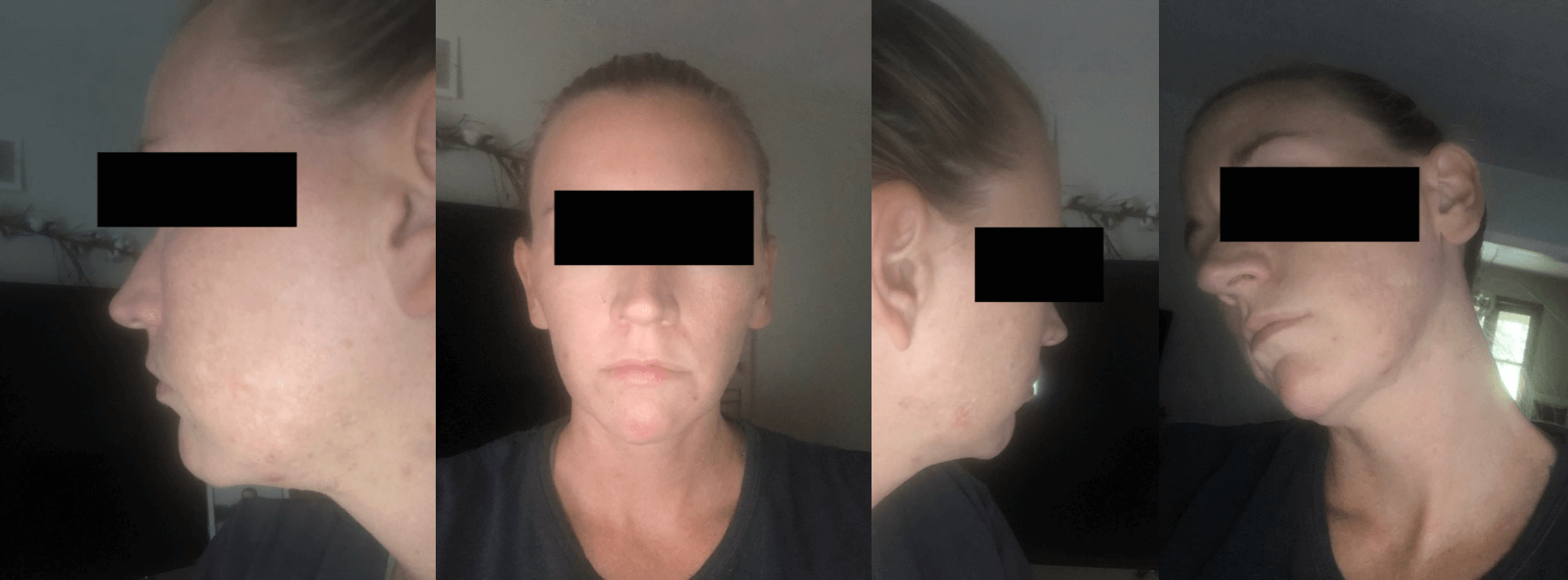 Apostrophe Tretinoin Formula and Spironolactone Before and After